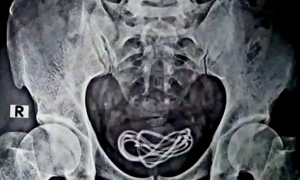 ce ar putea fi cu un cablu cu un penis