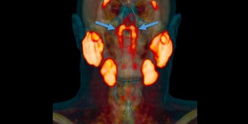 cercetatorii-cred-ca-au-descoperit-un-nou-organ-uman-dupa-300-de-ani